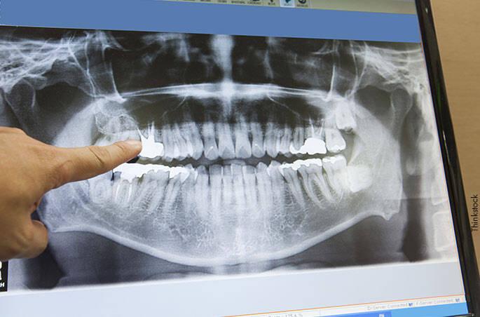 4 - Chapas de raio-x